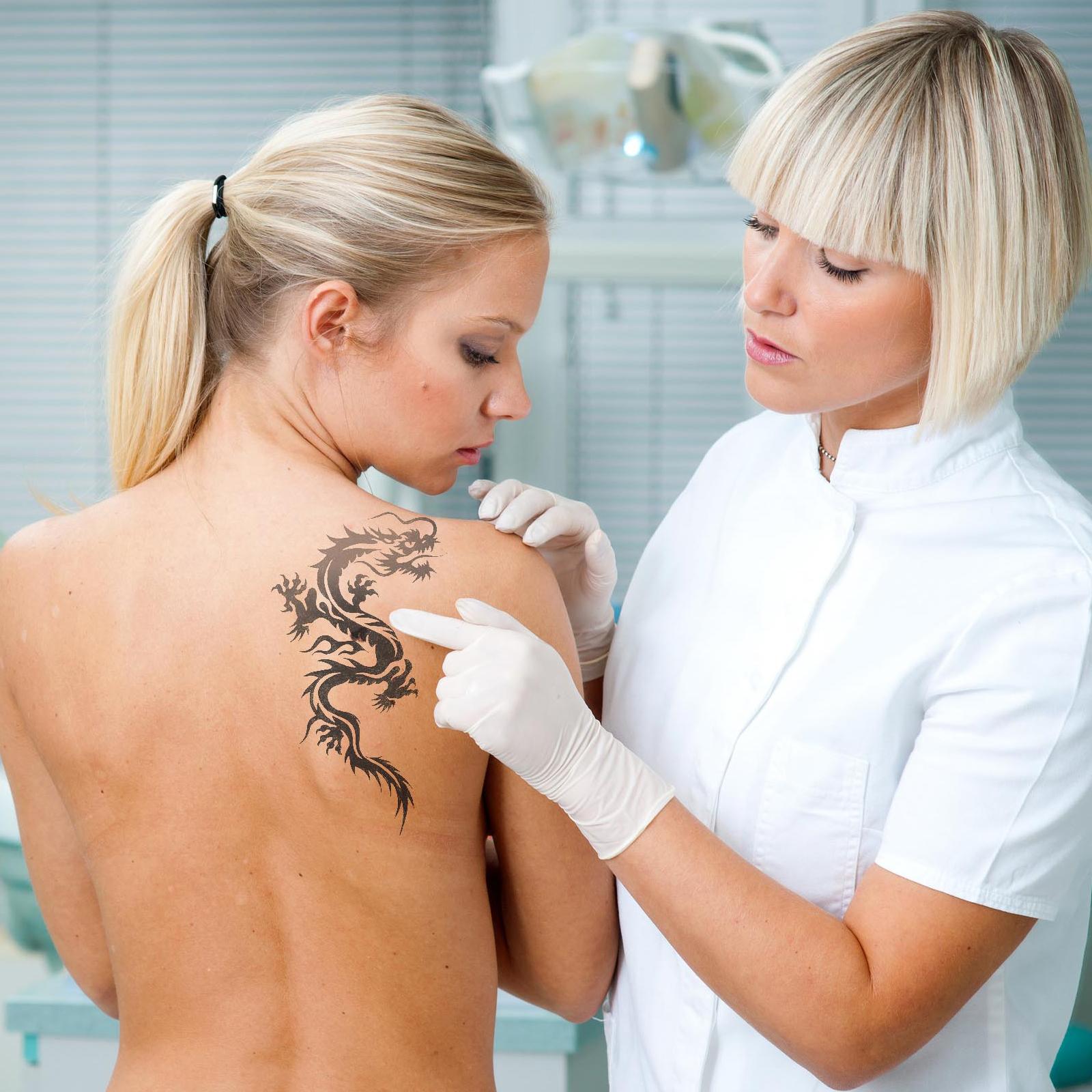 B-usuwanie-tatuażu