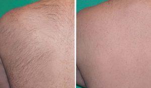 Laserowe-usuwanie-włosów-na-plecach