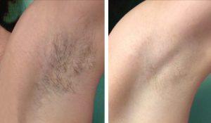 laserowa-depilacja-pach