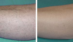 laserowe-usuwanie-owłosienia-nogi-1