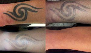 laserowe-usuwanie-tatuażu-Gorzów