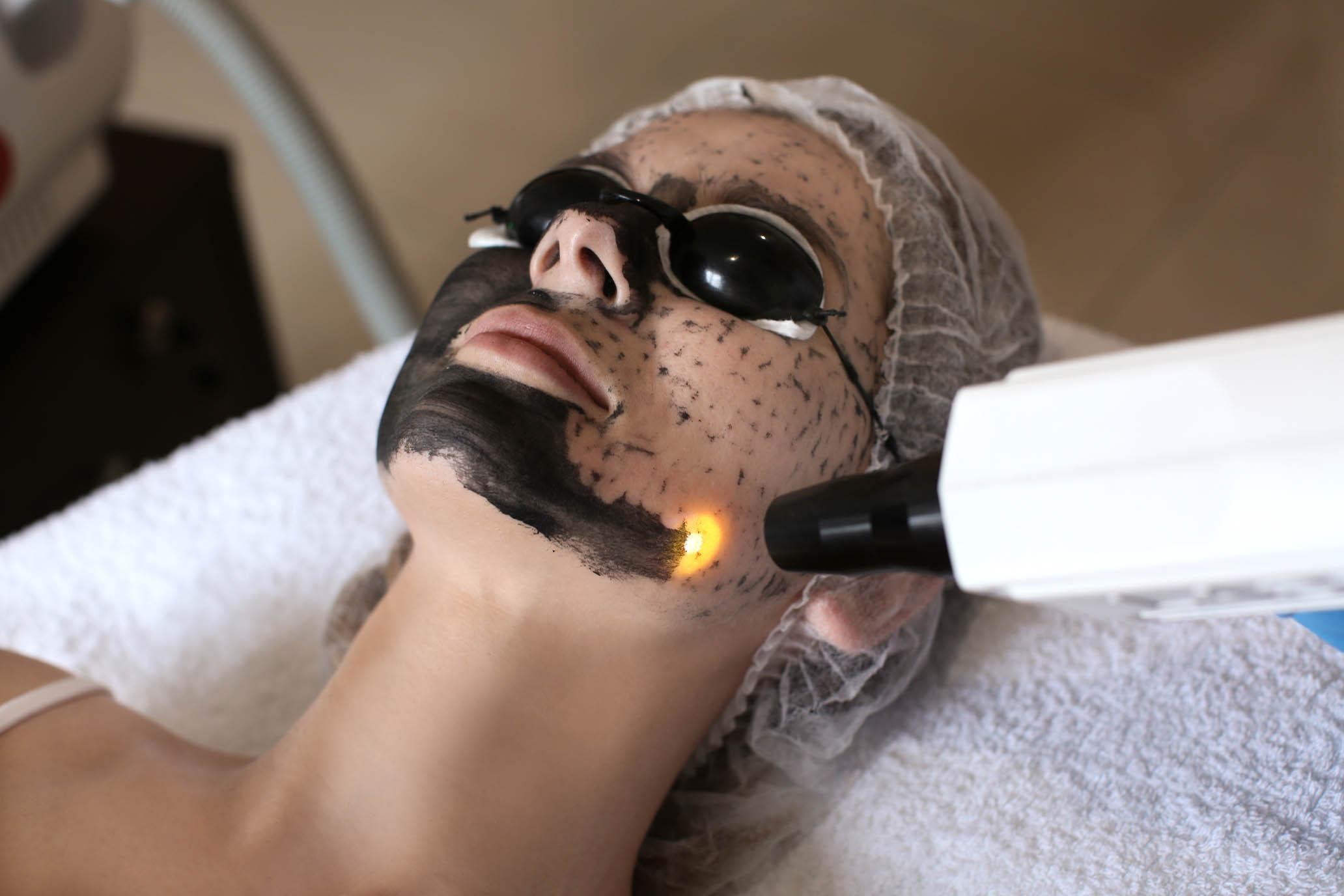 peeling węglowy black doll Gorzów