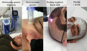 proces-oczyszczania-twarzy-black-doll-rozszeżony