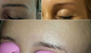 usuwanie makijażu permanentnego w Gorzowie