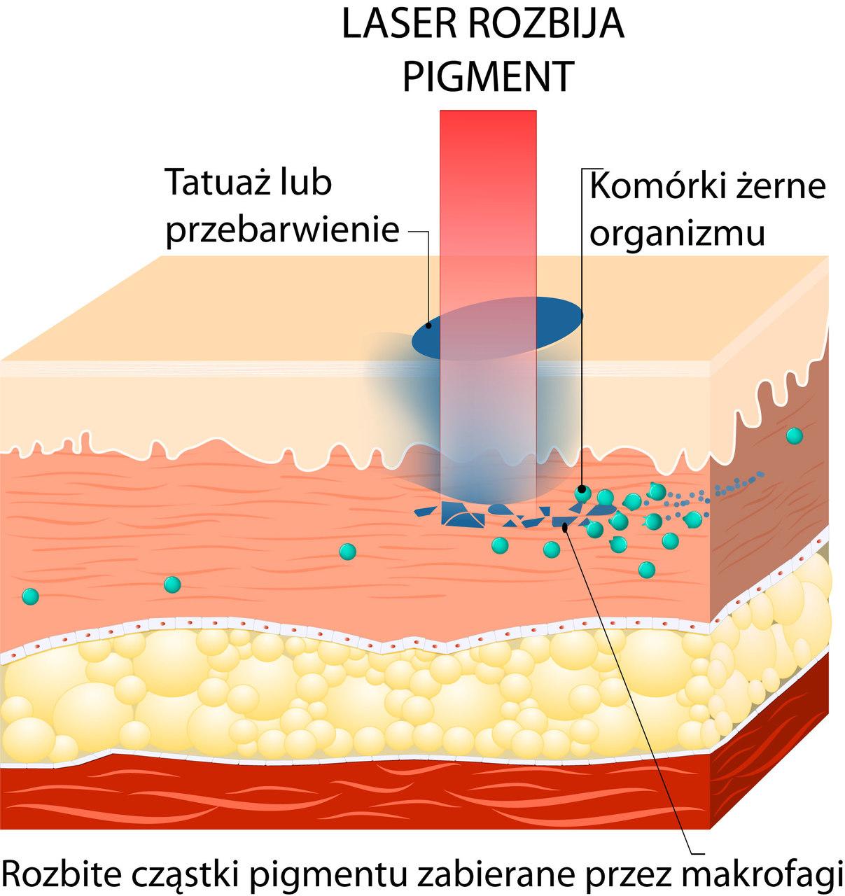 usuwanie tatuażu laserem infografika