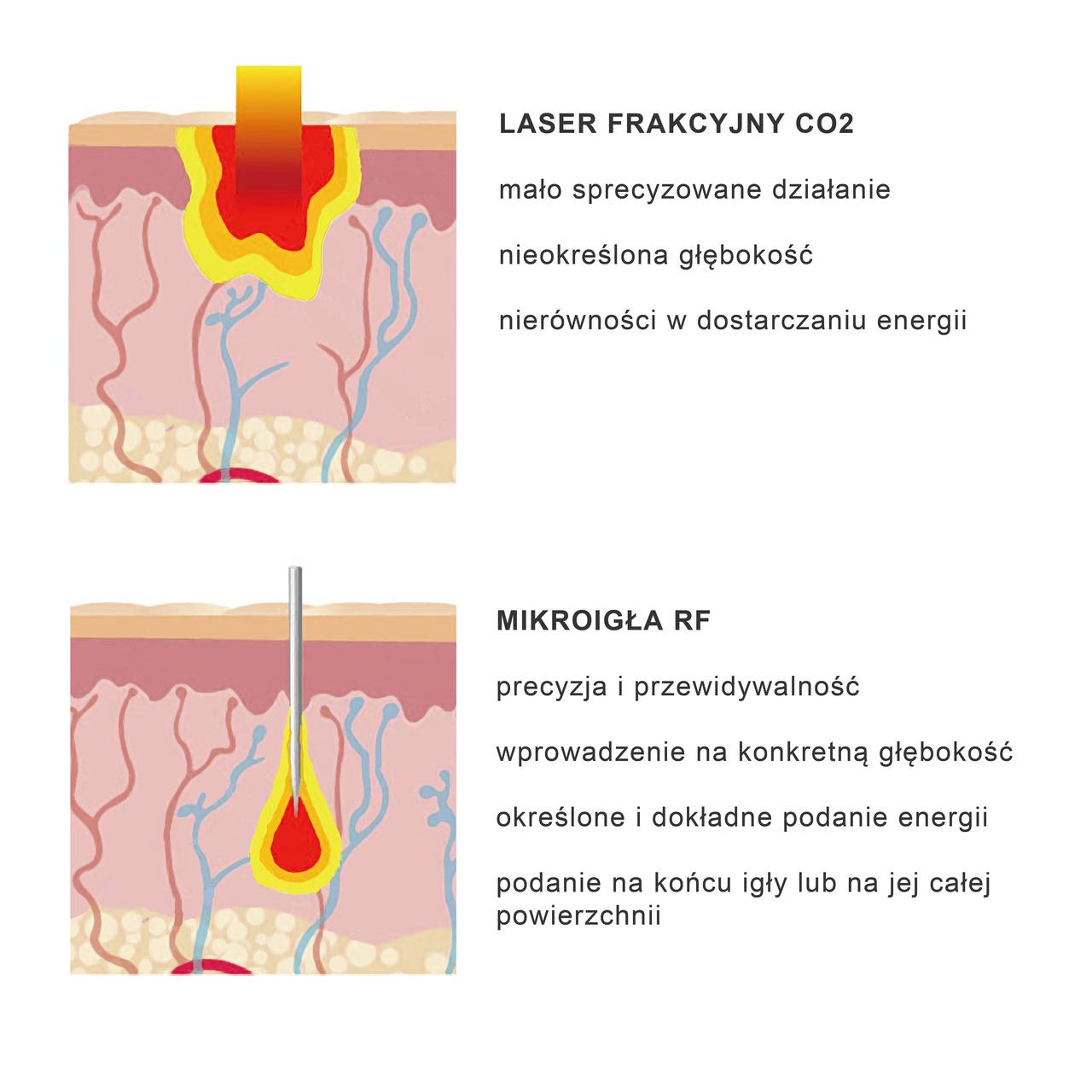 Laser konta mikroigłowy rf różnice