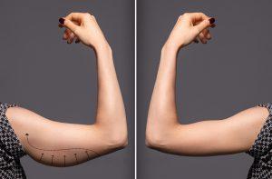 Redukcja wiorkich ramion