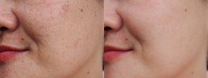 Usuwanie piegów i przebarwień twarzy w Gorzowie