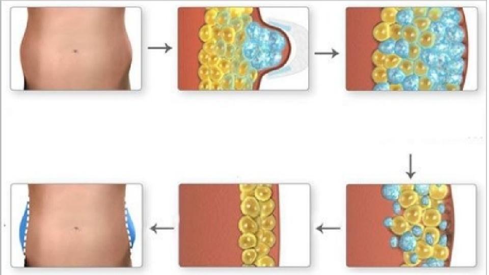 kryolipoliza działanie