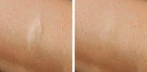 redukcja blizn usuwanie blizn