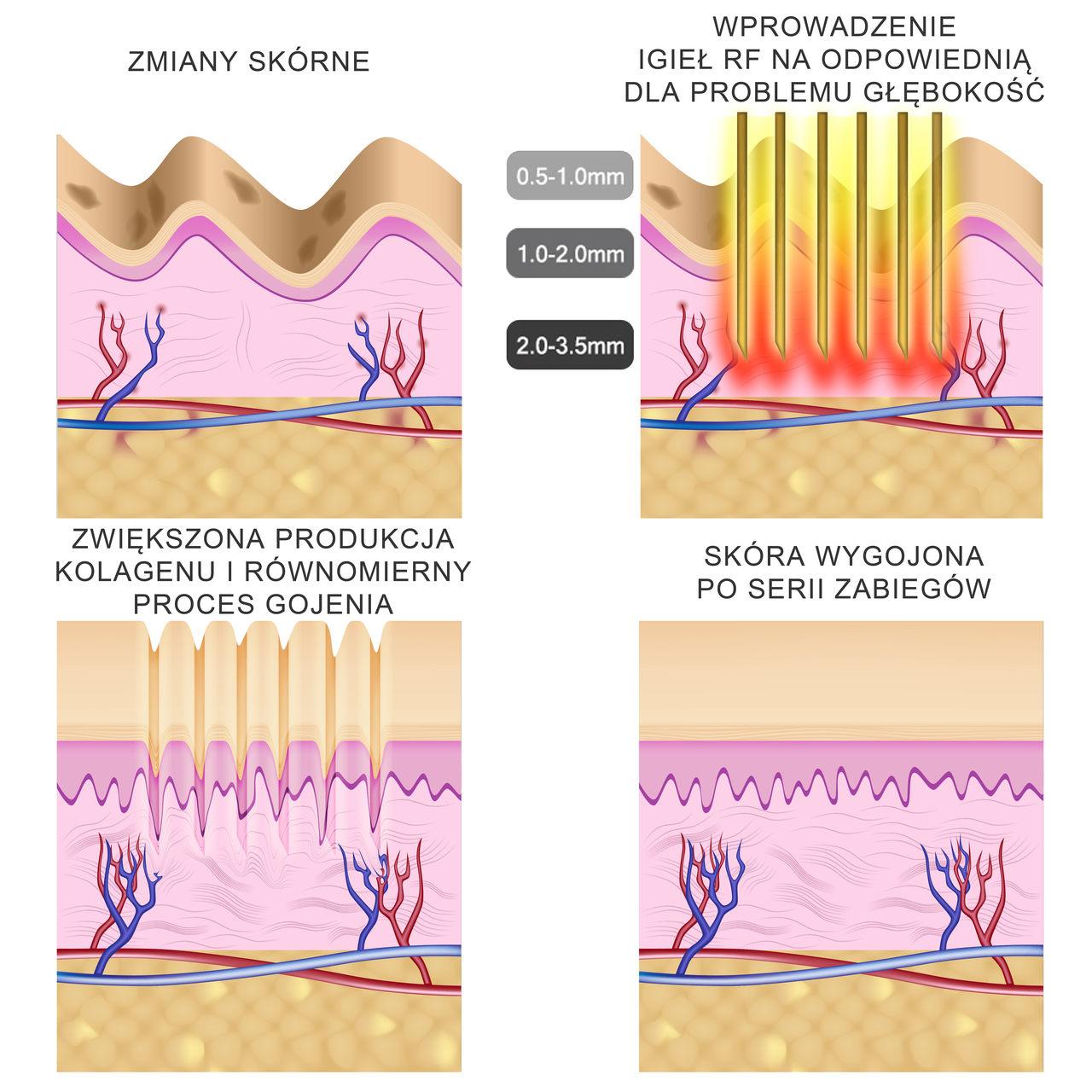 resurfacing i usuwanie blizn mikroigłowe RF