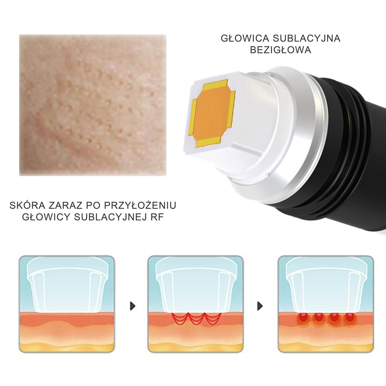resurfacing light powierzchniowe odmładzanie