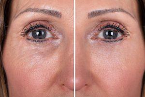resurfacing – redukcja zmarszczek, blizn i niedoskonałości skóry